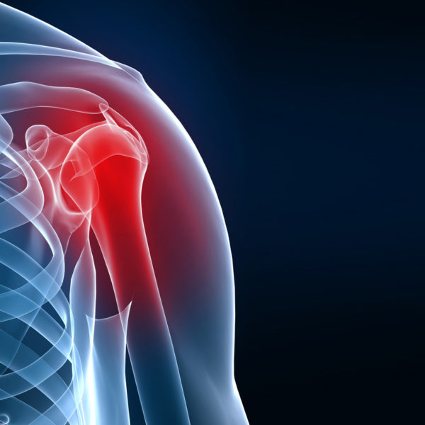 Артроз плечевого сустава. Деформирующий остеоартроз плечевого сустава
