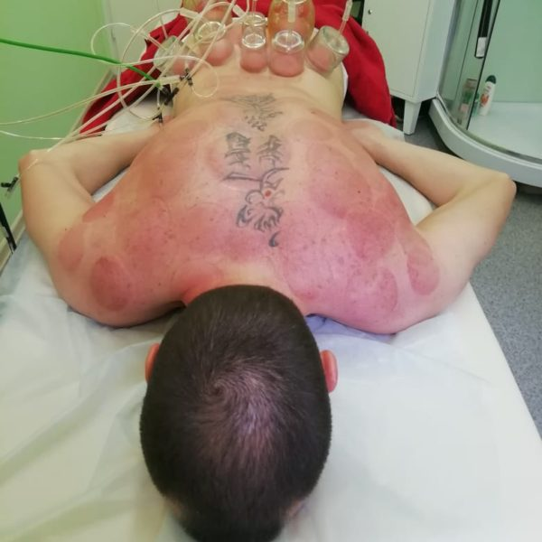 Вакуумно васкулярная терапия